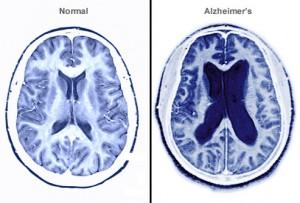 MRI-Alzheimer