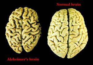 AlzheimersBrain300x210
